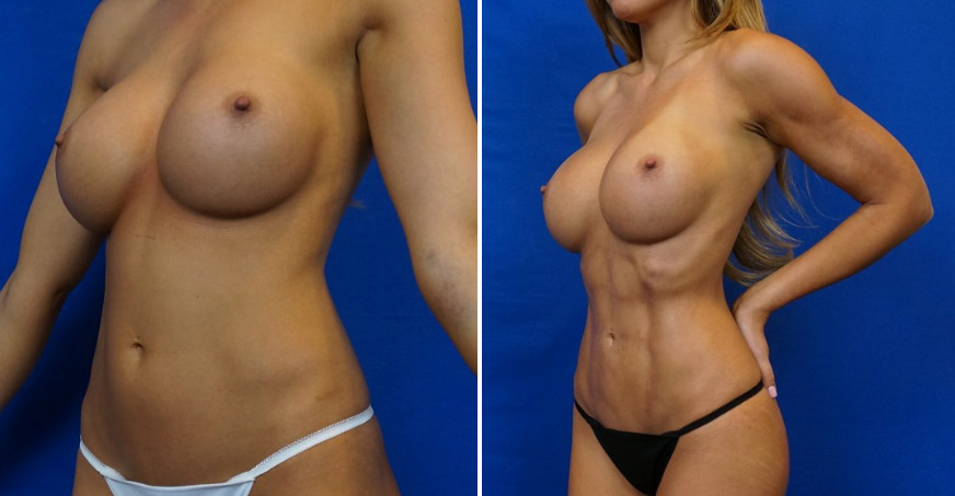 Breast Enhancement Patient 05