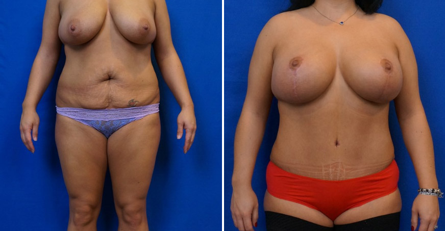 Liposuction Patient 03