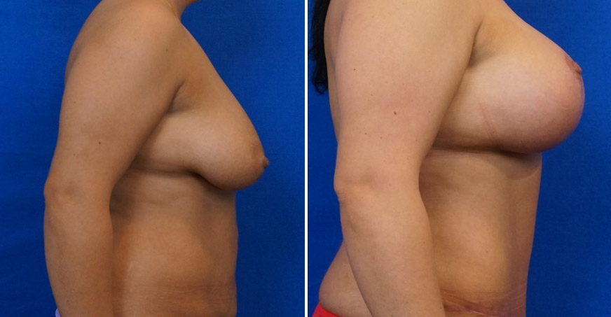 Liposuction Patient 04