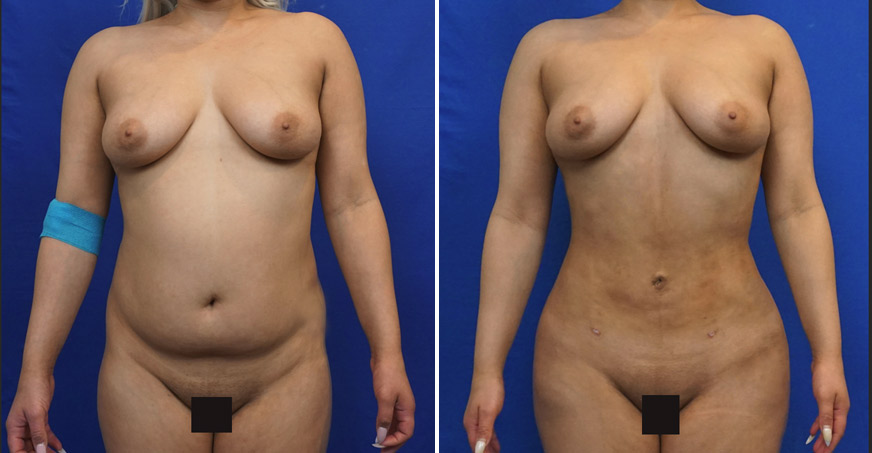 Liposuction Patient 01