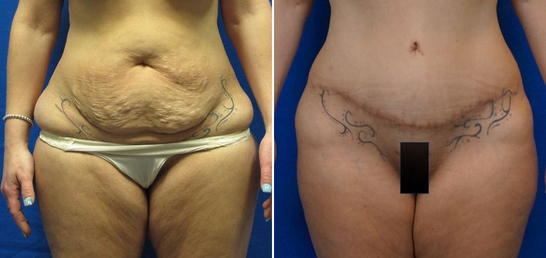 Tummy Tuck Patient 5