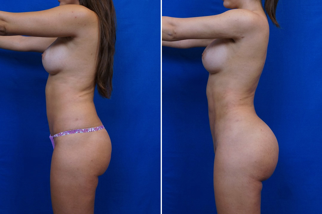 before after butt lift patient
