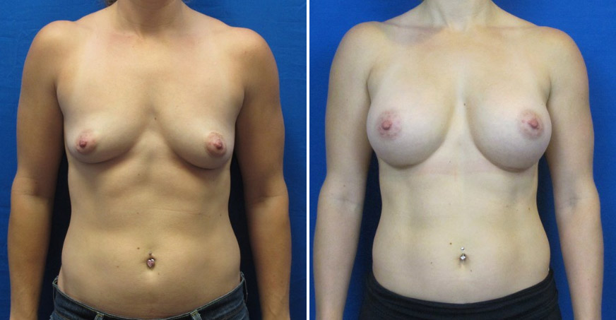 Breast Enhancement Patient 01