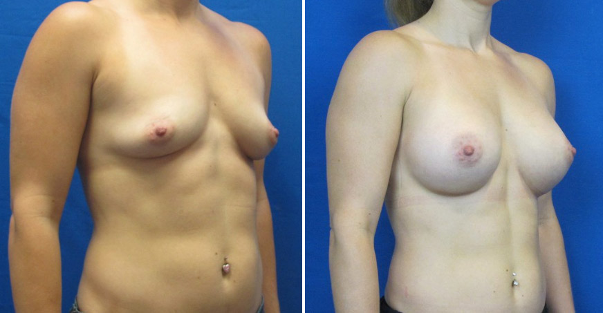 Breast Enhancement Patient 03