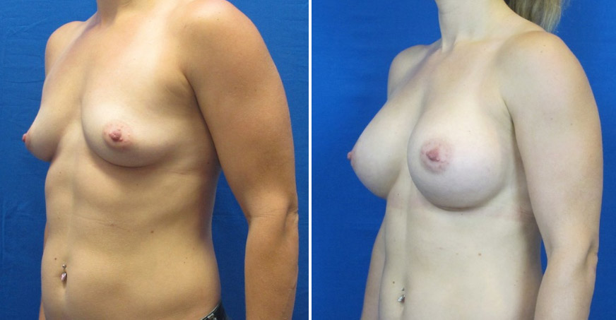 Breast Enhancement Patient 04