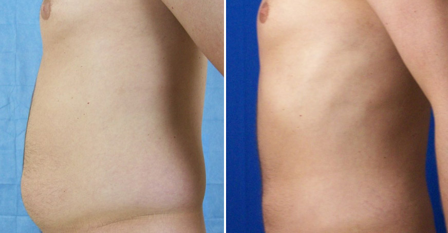 Liposuction Patient 02