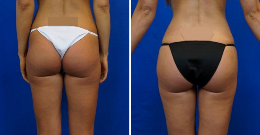 Liposuction Patient 05
