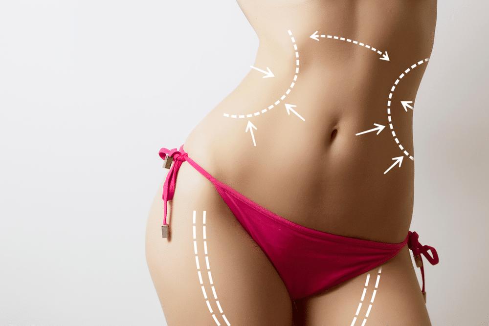 Traditional Liposuction versus WaterLipo®